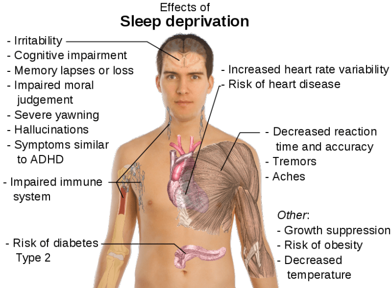 insomnia sleep mental health
